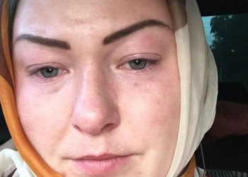Жительница Москвы решила осветлить волосы (7 фото)