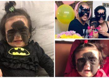 Маленькая американка с родимым пятном в виде «маски Бэтмена» едет лечиться в Россию (6фото)